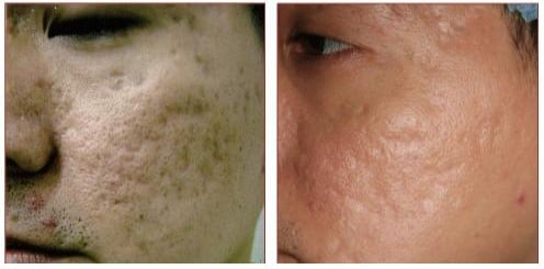 Before and After C02 Laser