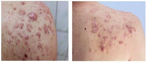 Keloid Acne Scarring Upper Back
