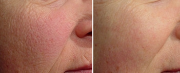 Laser Photorejuvenation