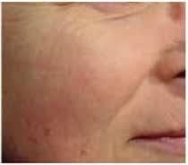 After Skin Rejuvenation Treatment