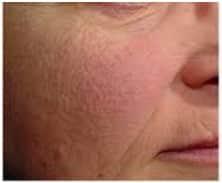 Before Skin Rejuvenation Treatment
