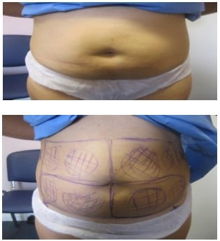 Before and After Liposuction Treatment
