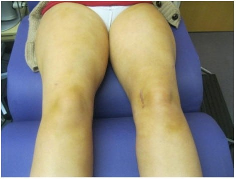 After Liposuction Treatment