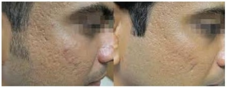 Before and After Fractora
