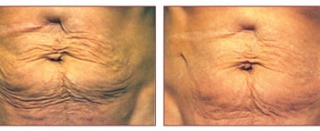 non-surgical-laserskin-tightening-titan