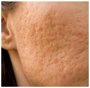 Rolling Acne Scarring