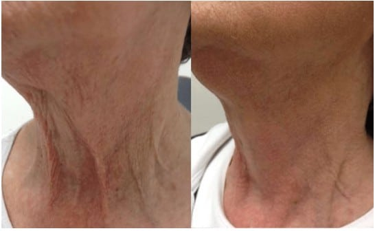Before and After Fractora Treatment