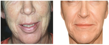 The VS 3D Full Face Lift