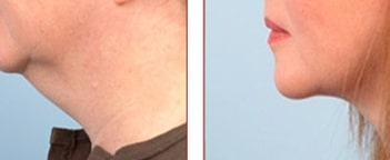 NeckTite Liposuction and Tightening