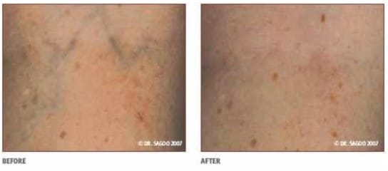 Before and After Thread Vein Knees