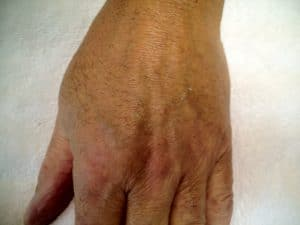 Before Ageing Hands