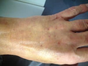 After Injectiosn for Ageing Hands