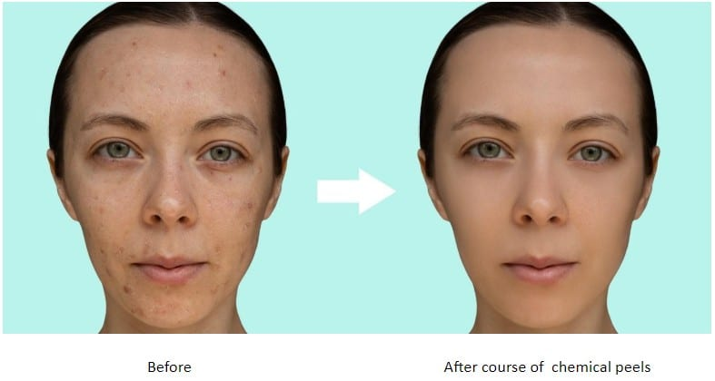 Before and After Chemical Peels