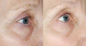Before and After Eye Peel