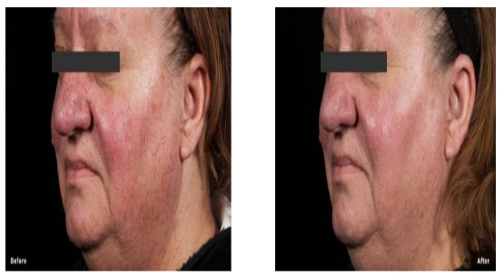 Before and After Thread Vein Face