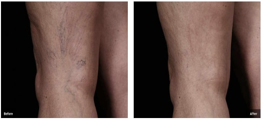 Before and After Back of Knee Thread Veins
