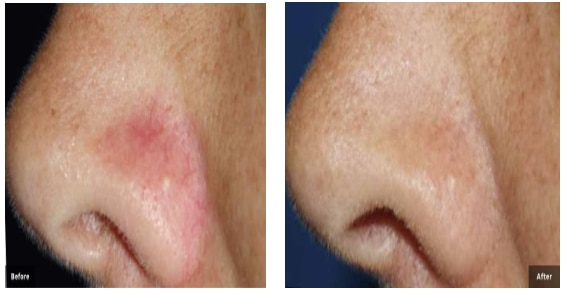 Before and After Thread Vein Nose