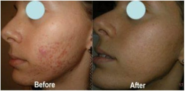 Before and After Glycolic Peels