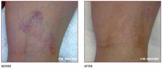 Before and After Thread Vein Legs