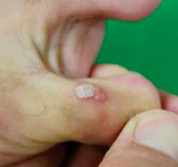 Before Wart Removal Treatment on the Foot