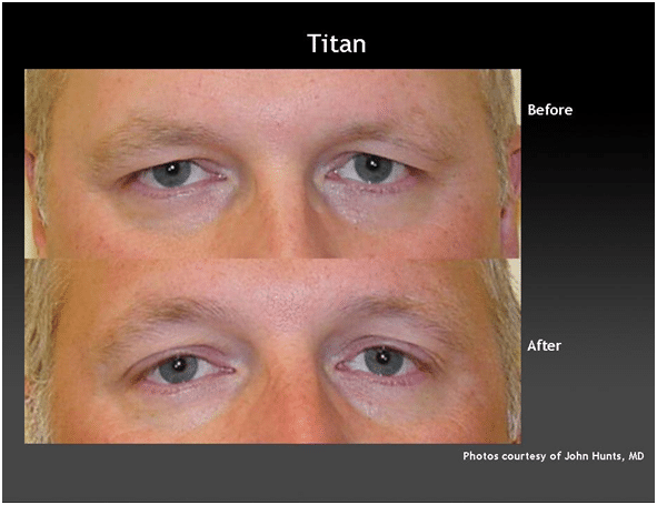 Non-surgical laser eyelid lift