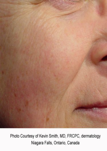 facial redness after treatment
