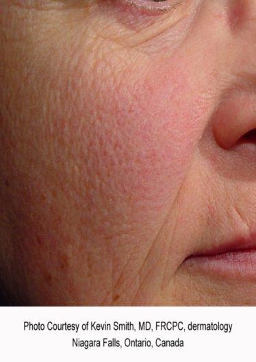 Facial redness before treatment