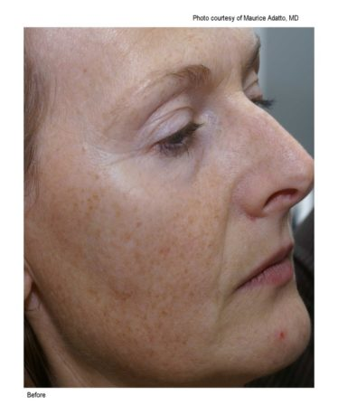 Sun damaged skin before Limelight treatment