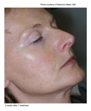 sun damaged skin after 1st Limelight treatment
