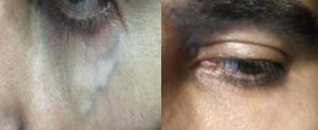 Laser under eye vein removal