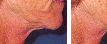 Non-Surgical Laser Skin Tightening