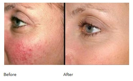 Facial Redness - Before and After