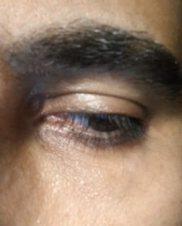 after under eye laser vein removal treatment