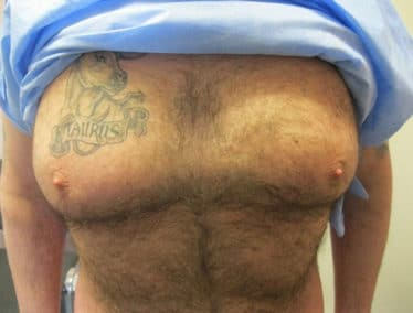before male breast reduction treatment