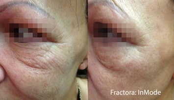 Eye Lift - Before and After
