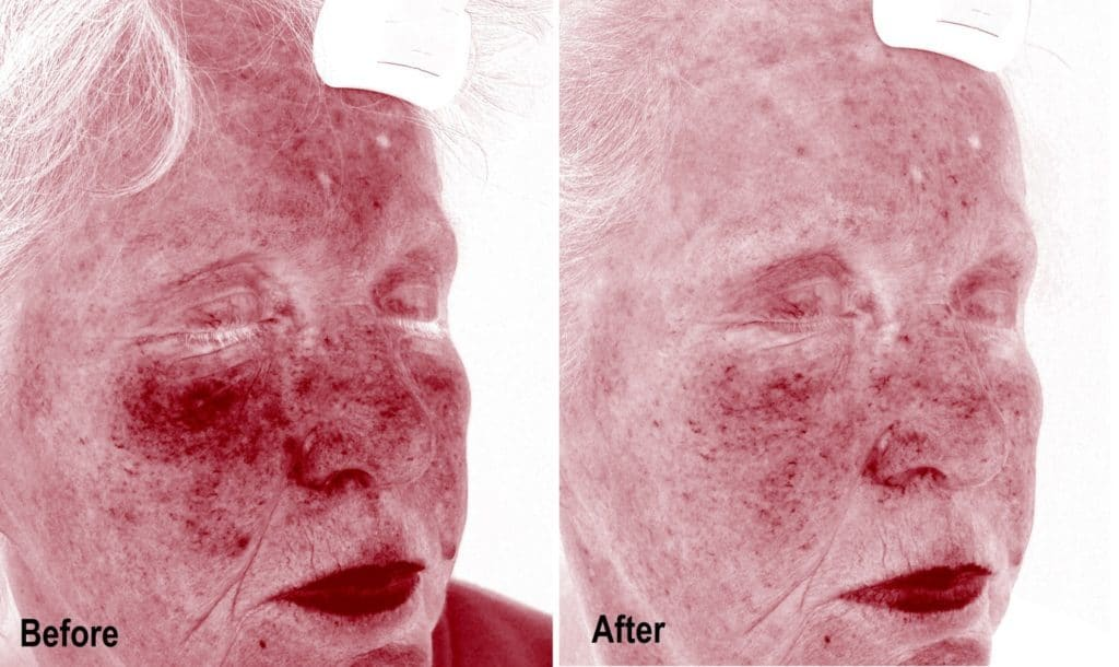 Before and After Treatment Under UV Light