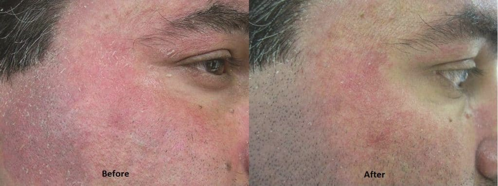 Before and After Rosacea Skincare