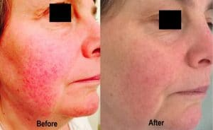 Before and After Laser Genesis