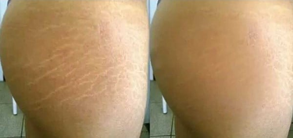 Before and After Laser Treatment for Stretch Marks