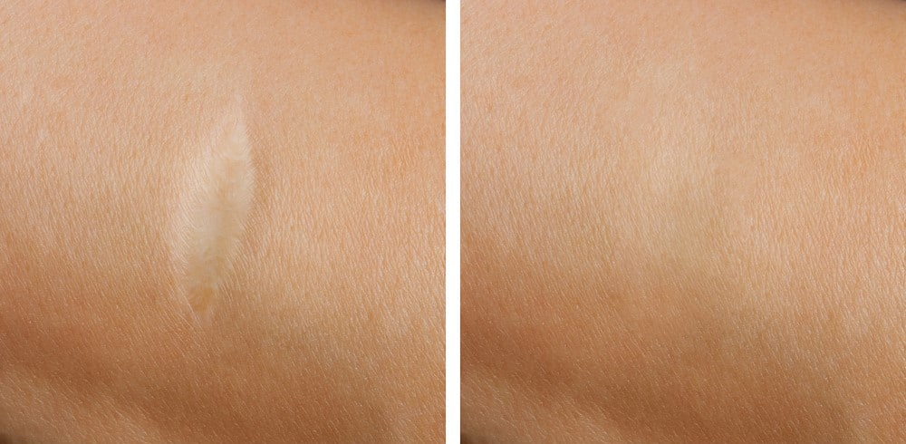 Before and After Laser Treatment for White Scar