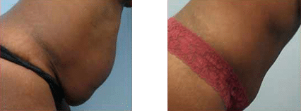 Photo Gallery | Cosmetic Surgery | Solihull Medical Cosmetic Clinic