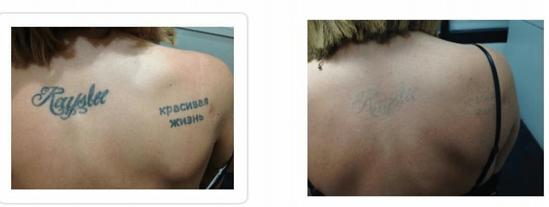 second image of before and after pico laser treatment
