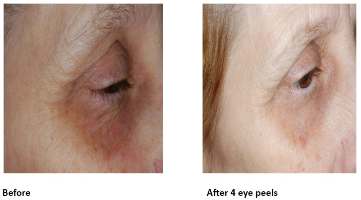 Before and After Course of Eye Peels