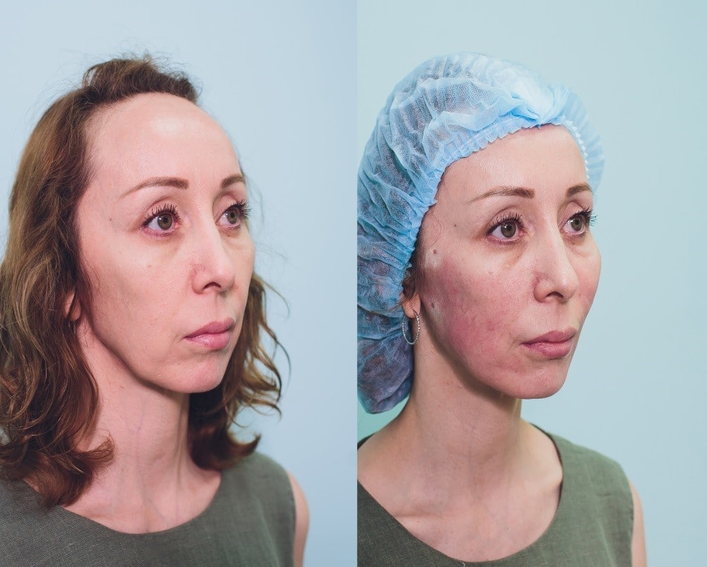 Before and After Non Surgical Face Lift